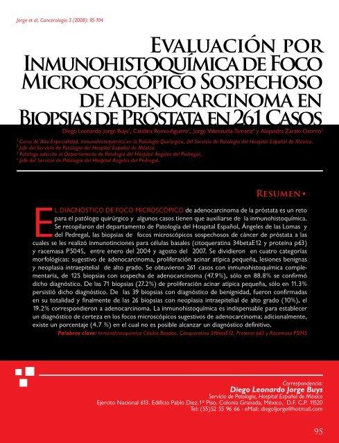 biopsia de próstata con tinción de eosina