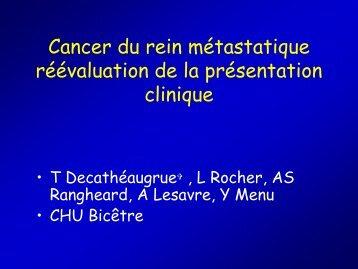 Cancer du rein métastatique réévaluation de la présentation clinique