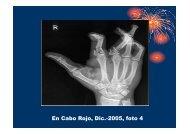 Accidentes con Pirotecnia parte 2