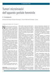 Tumori microinvasivi dell'apparato genitale femminile