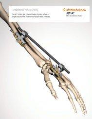 JET-X™ *smith≠phew Reduction made easy - Osteosyntese