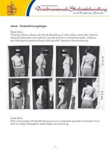 Jakob - Dreidimensionale Skoliosebehandlung nach Katharina ...