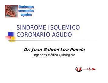 SINDROME ISQUEMICO CORONARIO AGUDO - Reeme.arizona.edu