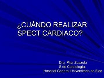 ¿cuando realizar spect cardiaco? - web www.tengopaginaweb.com