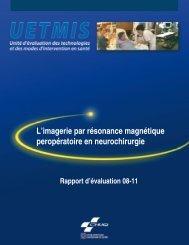 L'imagerie par résonance magnétique peropératoire en ... - CHUQ