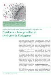 Dyskinésie ciliaire primitive et syndrome de Kartagener - CHUV