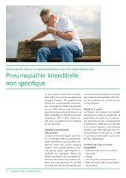 Pneumopathie interstitielle non spécifique (356Kb) - CHUV