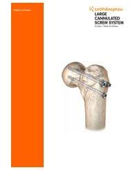 Surgical Technics Cannulated Screws.pdf - Osteosyntese