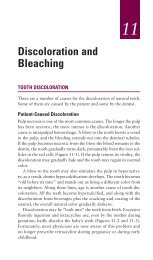 Ch11: DISCOLORATION AND BLEACHING