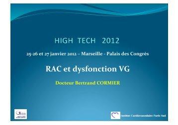 RAC et dysfonction VG - Mediathèque du congrès de High Tech ...