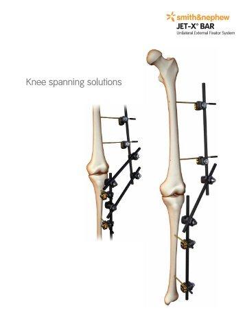 Jet-X Large Knee Spanning Solutions.pdf - Bonerepmedical.com