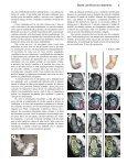 Pé torto: tratamento pelo método Ponseti - Global HELP - Page 7