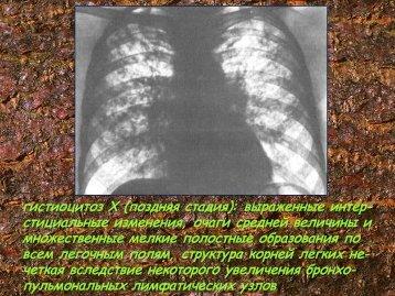Редкие заболевания легких. Часть 6