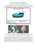 teză de doctorat diagnostic imagistic al maselor mediastinale - Page 6