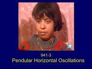 Pendular Horizontal Oscillations