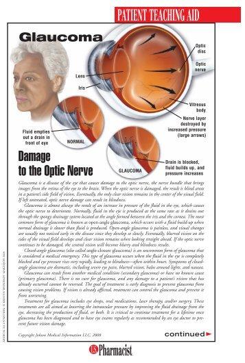 Glaucoma - US Pharmacist