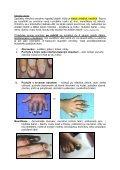 Omrzliny – první opatření a léčba v terénu - Page 3