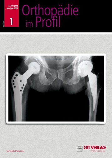 Die Revolution in der Hüftarthroskopie/ HPS d HIP ... - GIT Verlag