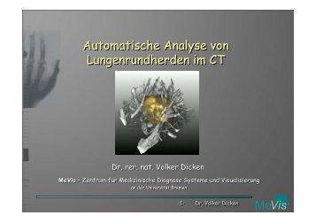 MeVis Automatische Analyse von Lungenrundherden im CT ...