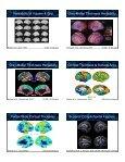 Quantitative Genomics slides - Brainmapping.ORG - Page 7