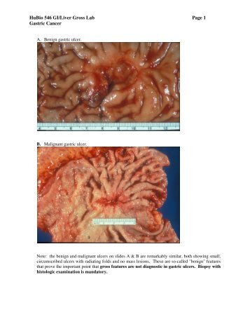 Gastric Ulcers and Carcinoma - Pathology
