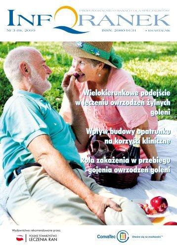 Leczenie owrzodzeń żylnych goleni cz.2 - Spondylus