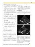 Zerebrale Fehlbildungen - Seite 7