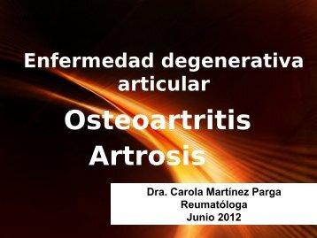 Osteoartritis o Artrosis y GES