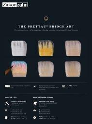 the prettau ® bridge art - Zirkonzahn