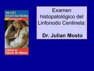 Examen histopatológico del Linfonodo Centinela: Dr. Julian Mosto