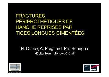 fractures périprothétiques de hanche reprises par ... - ClubOrtho.fr
