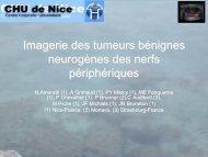 Imagerie des tumeurs bénignes neurogènes des nerfs périphériques