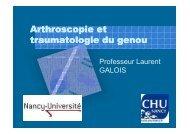 Arthroscopie et traumatologie du genou [Mode de compatibilité]