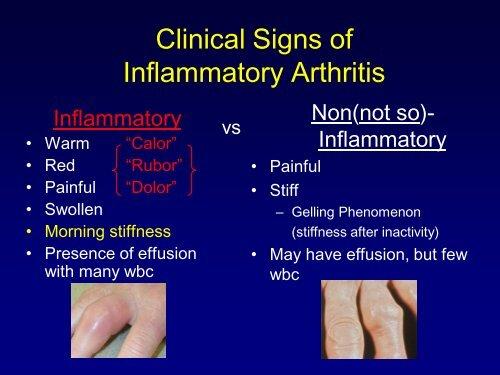 Osteoarthritis and Crystalline Induced Arthritis