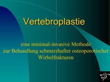 Vertebroplastie - Medical-advice.at