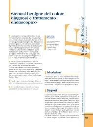 Stenosi benigne del colon: diagnosi e trattamento endoscopico - Sied