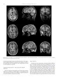 Cortical thickness determination of the human brain using high ... - Page 5