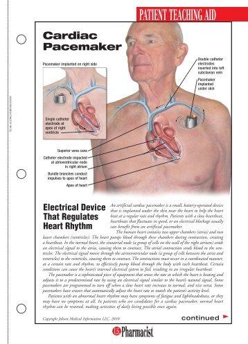 Cardiac Pacemaker pdf - U.S. Pharmacist