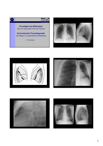 Grundlagen der Bildanalyse Konventionelle Thoraxdiagnostik