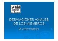 DESVIACIONES AXIALES DE LOS MIEMBROS