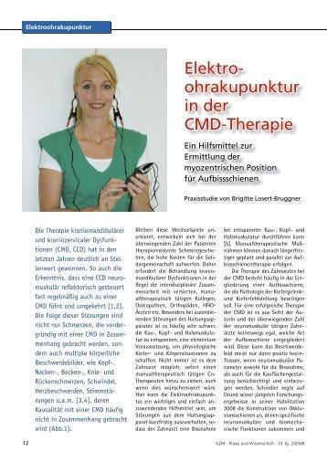 Elektroohrakupunktur in der CMD-Therapie. GZM 2:12-16
