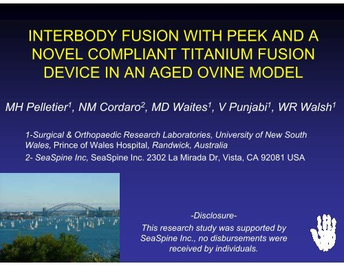 interbody fusion with peek and a novel compliant titanium