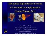High Intensity Focused Ultrasound - Cmebyplaza.com