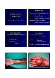 extravasations