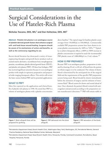 Surgical Considerations in the Use of Platelet-Rich Plasma - Harvest ...
