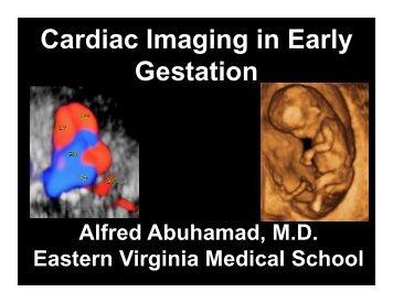 Early Fetal Echocardiography - Cmebyplaza.com