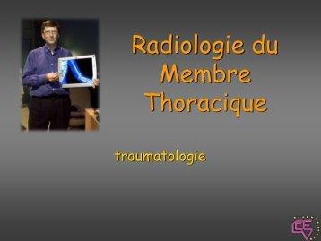 Radiologie du membre thoracique