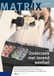 Onderzoek met levend weefsel - Technische Universiteit Eindhoven ...