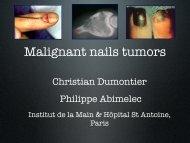Malignant nails tumors - ClubOrtho.fr