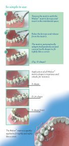 Walser Matrices - Janouch Dental - Page 3